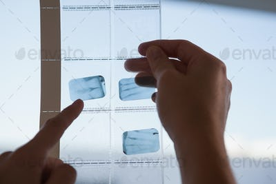 Dentists looking and pointing to xray at the dental clinic