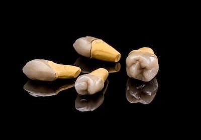 Prosthetic teeth
