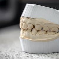 Dental casting gypsum model plaster
