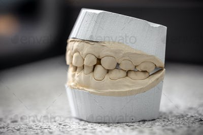 Dental casting gypsum model plaster