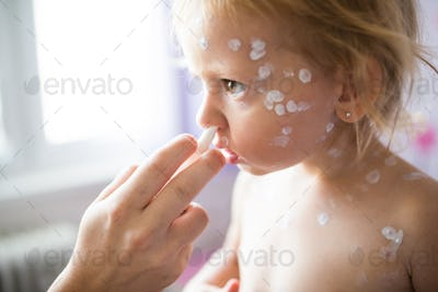 Girl with chickenpox, antiseptic cream applied to the ras