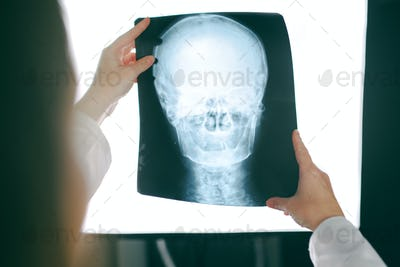 Female doctor looking at x-ray image of human head