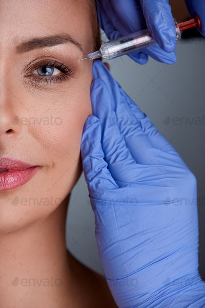 middle age woman on botox treatment