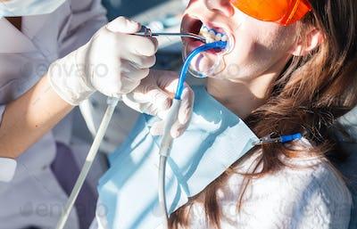 Teeth whitening procedure close-up