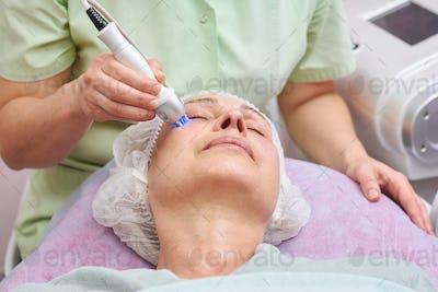 Adult female, rf skin tightening