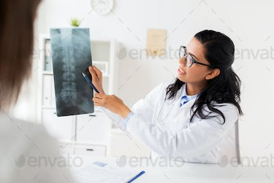 doctor with x-ray of spine and patient at hospital