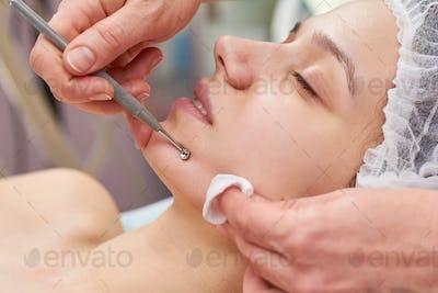 Girl having face cleaned