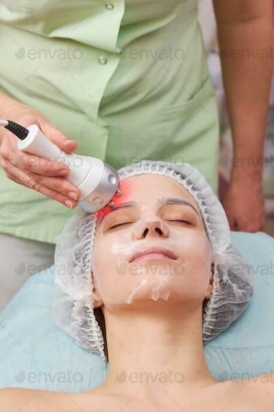 Female face, rf skin tightening