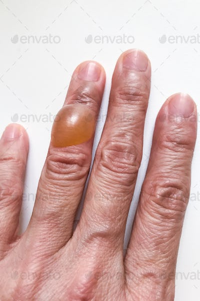 Close-up on finger with painful inflammed fluid-filled blister