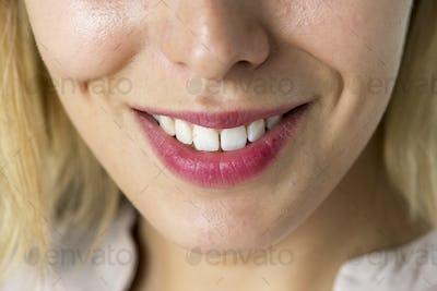 Closeup of smiling woman's teeth