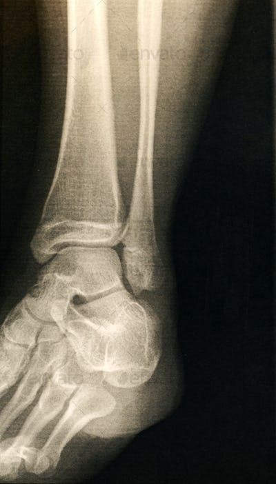 X-ray of a foot