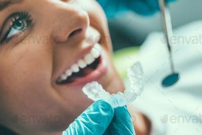 Tooth whitening procedure