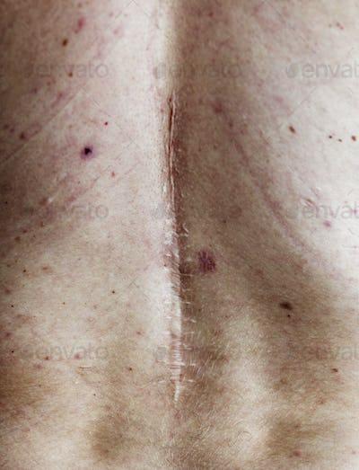 Elderly person back surgery scar