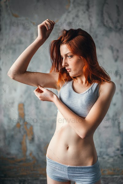 Anorexic sick woman, medical illness