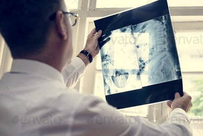 Doctor is checking patient x-ray film