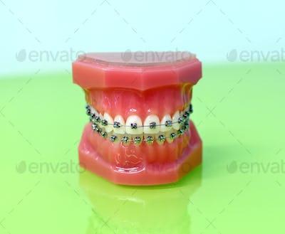 Model of dental appliance showing braces