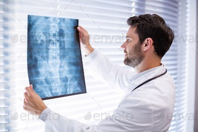 Male doctor examining x-ray