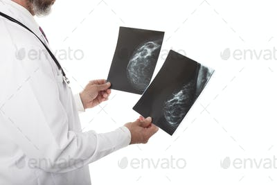 Doctor with breast Xray