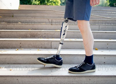 Young man with prosthetic leg walking