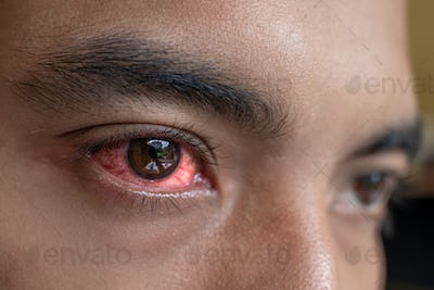 irritated red eyes need sterile eye drops
