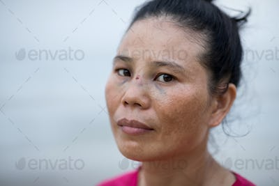Helpless suffered woman with domestic vilonce