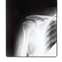 X-ray image of human shoulder joint