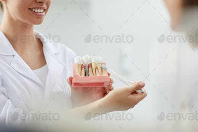 Smiling Dentist Pointing at Tooth Model