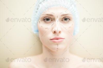 Facial lifting