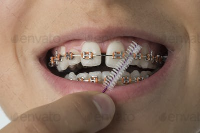 Close up of cleaning dental braces