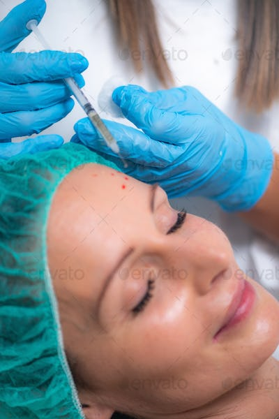 PRP or Platelet Rich Plasma Cosmetic Face Treatment