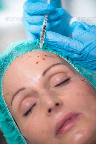 PRP Face Injecting Treatment. Anti-Aging Face Treatment.