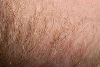 Close-up of human skin with hair