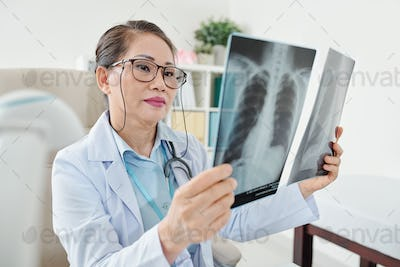 Doctor examining chest x-rays