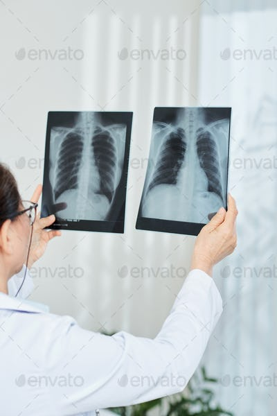 Doctor comparing chest x-rays
