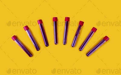 Test tubes containing a blood test sampless