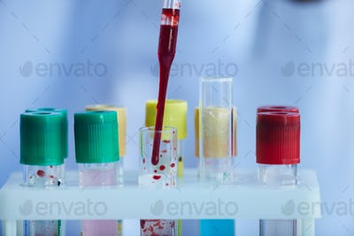 Blood samples in the lab