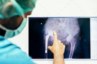 Medicine doctor looking x-ray image.
