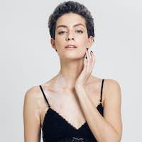 Vitiligo white woman beauty portrait