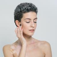 Vitiligo woman beauty portrait