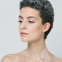 Vitiligo woman skin unusual beauty portrait