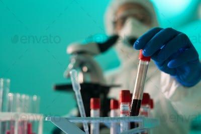 Checking blood for coronavirus antibodies