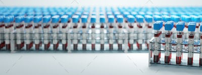 Coronavirus Covid19 test tubes in a rack. Medical screening and Covid tests production