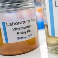 Wastewater samples, analysis of sars-cov-2 virus in patients infected
