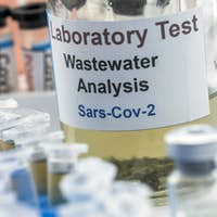Wastewater samples, analysis of sars-cov-2 virus in patients infected by human coronavirus 229E