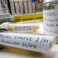 Fecal sample of a person infected with botulism