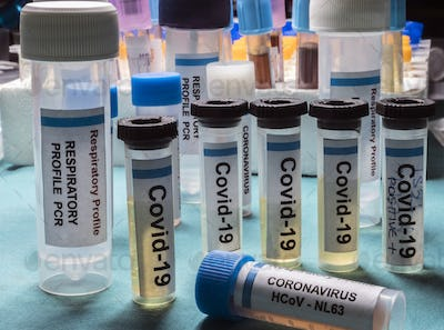 Vials containing samples from patients infected with covid19 coronavirus in a laboratory, Spain