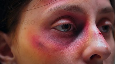 Close up of face with bruise