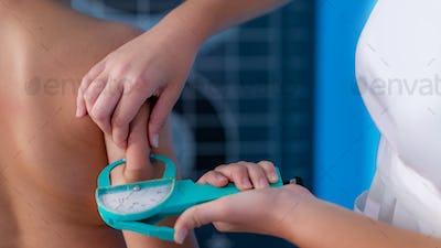 Subcutaneous body fat measurement in children