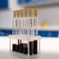 numbered medical tubes with samples of blood test at laboratory