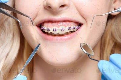 Closeup shot of dentist tools in front of smiling mouth with braces.